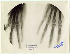 Photographie Médicale - X Ray - Radiographie - 1937