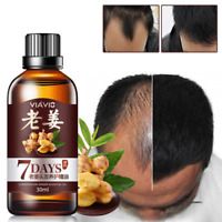 Hair Regrow 7 Day Ginger Germinal Serum Essence Oil Loss Treatement Growth 30ML