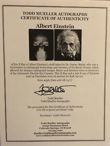 Very Rare Original Xray X-ray Of Albert Einstein Skull
