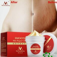 Smooth Body Cream Stretch Marks Scar Removal Maternity Skin Repair Care Postpart