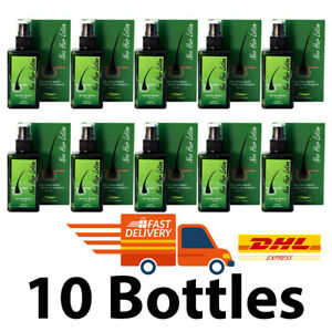10 x 4oz. Neo Hair Lotion Growth Root Hair Loss Treatments beards sideburns