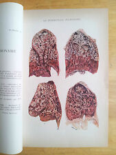 Tuberculosis - Lungs, Respiratory System, Vintage Medical print 1949 french