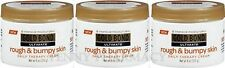 Gold Bond Ultimate Rough and Bumpy Skin Daily Therapy Cream - 8 oz ( 3 pack )