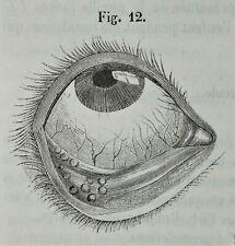 1847 - AUGEN - Ophthalmologie - CHIRURGIE Augenarzt Medizin Erstausgabe Leder