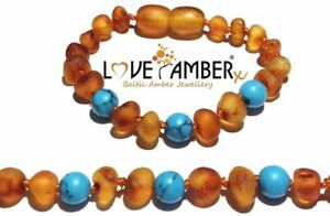 Boys Raw Honey Baltic Love Amber Child Anklet Blue Howlite Bluebird No Teeth UK