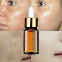10ml Moisturizing Whitening Facial Serum Hyaluronic Acid Anti-aging Vitamin C