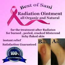 CANCER Radiation Relief cream Ointment 50ml ALL ORAGANIC AND NATURAL it works!!