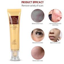 Acne Scar Removal Cream LanBeNa Skin Repair Face Cream Acne Spots Treatment 30g