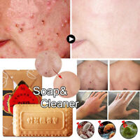 Sandalwood Whitening Soap Remover Cleaner Bar Acne Pimple Facial Nose Blackhead