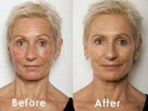 Retinol + Hyaluronic Acid & Vitamin C Anti-Aging Wrinkle GEL-CREAM Serum