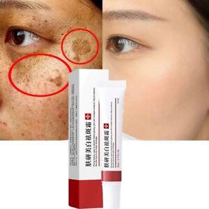 Whitening Freckle Cream Remove Melasma Acne Pigment Melanin Dark Spots Repair