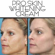 SKIN WHITENING CREAM THAT WORKS! also treats acne & scars - Large 125ml