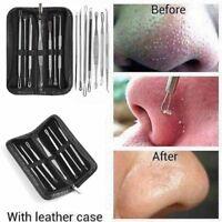 7Pcs Blackhead Pimple Blemish Comedone Acne Extractor Remover Tool Set Kit