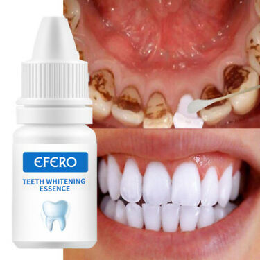 Teeth Whitening Serum Gel Oral Hygiene Teeth Cleaning dental Care Toothpaste