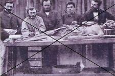 """curiosité , oddities : photo """" autopsie  """""""