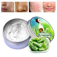 100%Pure Aloe Vera Gel Moisturizing ANTI-Acne Nourish Cream Face Skin Care Fresh