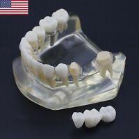 USA Dental Implant Teeth Bridge Model Clear Transparent Typodont Lower Jaw 2010