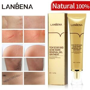 LanBeNa 30g TCM SCAR AND ACNE MARK REMOVAL GEL OINTMENT Acne Scar Cream NG