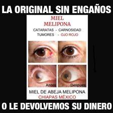 Sin Engaños MIEL MELIPONA HONEY EYES Para Un Mes CATARATAS, CARNOSIDAD, GLAUCOMA
