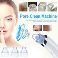 Face Pore Cleaner Blackhead Remover Vacuum Suction Facial Clean Care Machine