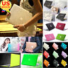 "Marble/ Silk Leather/ Quicksand Matt Hard Case Cover for MacBook Air Pro 11""/13"""