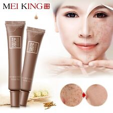 Dark Spot Corrector Skin Whitening Fade Cream Lightening Blemish Removal Serum