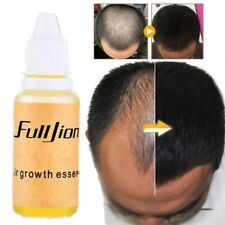 Fast Hair Growth Essence Products Essential Oil Liquid Preventing Hair Loss