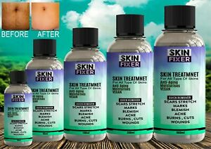 Fast Scar Acne Stretch Mark Removal Ointment Gel Treatment Wounds Cuts Burns🔥 ✅