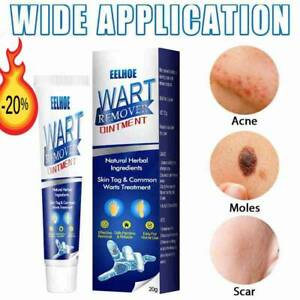 Instant Blemish Removal Gel Body Warts Remover Treatments Cream Skin Tag Care