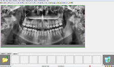 Gendex VixWin Imaging Software - DENTAL IMAGING *Latest Version*