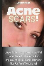 Acne Scars! : How to Get Rid of Acne Scars with Home Remedies for Acne and...