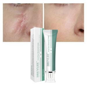 Narbengel Creme Akne Flecken Entferner Serum Gesicht Hautverbrennungen Reparatur