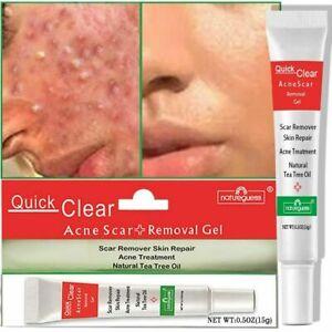 Acne Treatment Face Cream Scar Blackhead Remover Repair Gel Oil Control Shrink