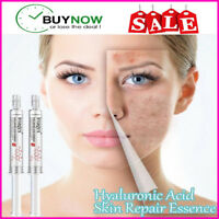 Hyaluronic Acid Skin Repair Essence 100% removes Acne Scars & Surgical Scars /an