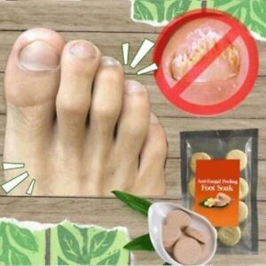 10pcs Anti-fungal Peeling Foot Soak Tablets Home Foot Bath New
