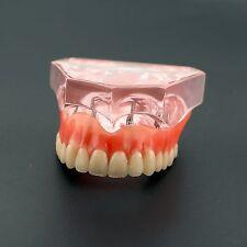 Dental Study Model for Teaching Overdenture Superior w/h 4 Implants Demo Model
