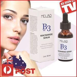 ✅%5 Niacinamide B3 Serum + 1% Zinc Acne Anti-Aging Pore Sunburn  FREE 📮💯🌟✨✨