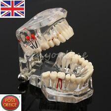 Dentaire étude teach implant dents modèle restauration pont carie dent education