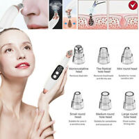 Electric Blackhead Remover Pore Facial Vacuum Cleanser Face Cleaner Tool Women