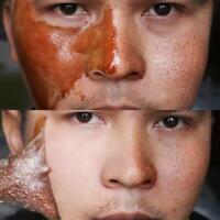 Honey mask Tear Peel Dead Skin Peel Clean Blackhead Oil control Mask Remover