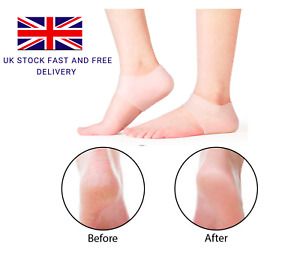 2x Silicone Gel Heel Sleeves Cracked Foot Skin Care Protector Blister Prevention