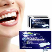 28Pcs Glamorous White Teeth Whitening Strips Dental Whitener Oral Teeth Care