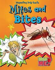 Mites and Bites (Disgusting Body Facts)