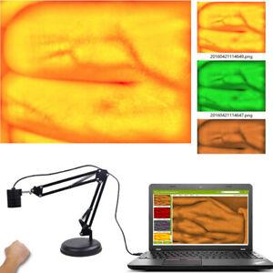 Adult Children Hands Feet Vein Viewer Imaging IV Medical Infrared Vein Finder