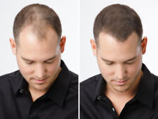 2 Pcs 27.5G Hair Building Fibers Black Dark Brown Medium Brown. .