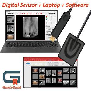 "Digital Intraoral Dental Sensor HDX Size 2 + Software + Laptop 15""+ Twain Driver"