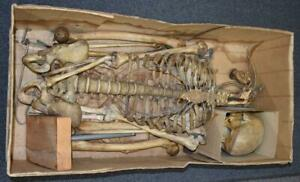 Anatomical Model Human Skeleton Retired From Medical College