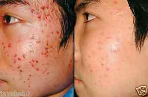 2 BEST PRODUCTS ACNE TREATMENT HYALURONIC ACID CREAM & MICRO DERMABRASION SCRUB