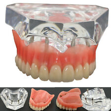 Dental Teaching Model Overdenture Superior Teeth Typodont 4 Implants 6001 Clear