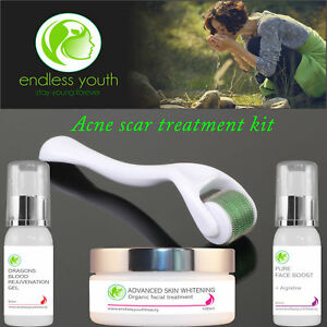 Acne Scar Removal Cream + Gel + Derma Roller Treatment Kit Marks Acne Spots